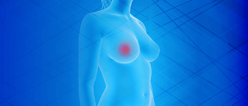 Short comments: Breast Cancer risk in trans women